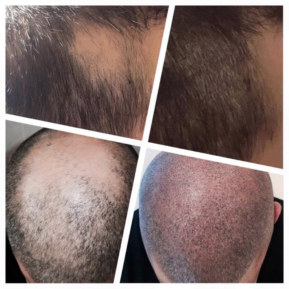 Mediz. Pigmentierung Kopfhaut-Pigmentierung